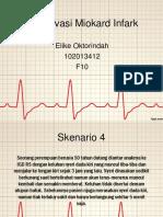 305608253-PPT-STEMI