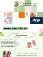 Diapos de Apendicitis