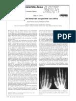 Incapacidad Motora en Una Paciente Con Artritis