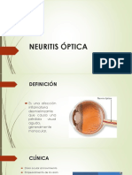 Neuritis Optica