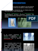 148154271-Hipercementosis-y-Anquilosis.pptx