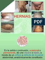 Hernias.pdf
