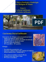 correlação patologia x radiologia  maligna parte 2