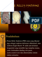 Prune Belly Syndrome