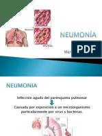 Neumonia en pediatria