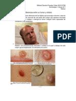 diferencia tumor