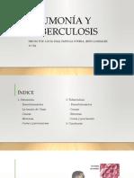 Neumonía y Tuberculosis