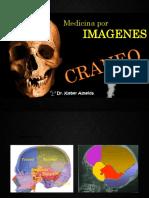 Aulã Diagnóstico por Imagem
