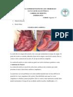 coartacion aortica informe