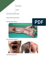 Primeros auxilios en el nivel semiconsciente mmm.docx
