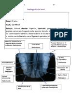 Radiografías oclusales arcada superior e inferior y técnica de Clark