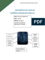Serie radiográfica del maxilar superior hemiarcada derecha y izquierda