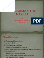 1fractures of Maxilla