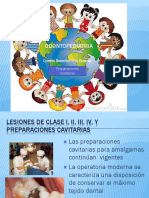 113044856-Preparaciones-Cavitarias-de-Odontopediatria.pptx