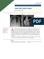 Paralisis diafragma