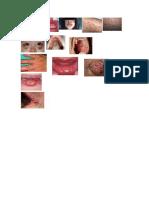 sindromes.docx