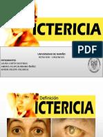 Exposicion Ictericia