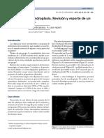 Caso Clinico Acondroplasia
