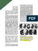 Caso-TB.docx