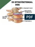 Prolapsed Intervertebral Disk