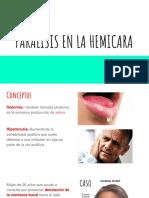 Paralisis en la Hemicara