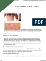 Remédio para Psoríase _ Pomadas, Cremes, Loções e Outros.pdf