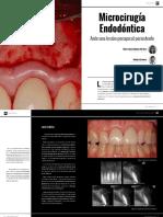 Microcirugia endodóntica