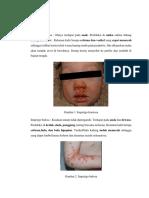 Penyakit kulit bakteri.docx