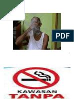 kawasan tanpa asap rokok