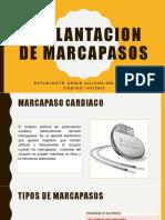 implantacion de marcapasos