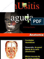 Sinusitis Aguda v9