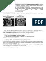 esquizencefalia y lisencefalia.docx