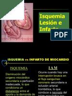 isquemia lesion e infarto