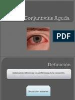 conjuntivitisaguda-160521185119