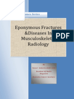 eponymous fractures and diseases of MSK radiology.pdf