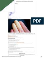 Biodescodificación - Síndrome de Raynaud _ Memoria Emocional