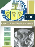 BANCO DE IMÁGENES ABDOMEN2.pptx