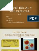 Herpes Bucal y Sifilis Bucal