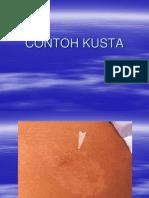 KUSTA-GB.PPT