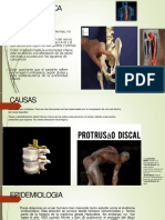 ciatica rehabi.pptx