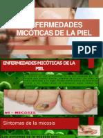 ENFERMEDADES-MICOTICAS.pptx