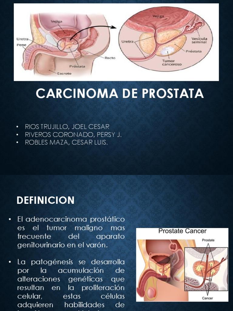 resumen de la definicion de próstata