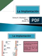 La Implantación