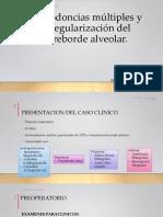 Exodoncias Múltiples y Regularización Del Reborde Alveolar