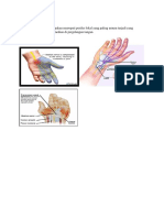 Carpal tunnel syndrome.docx