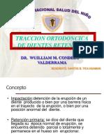 322126881-3-4-CANINO-SUPERIOR-RETENIDO-ppt.ppt