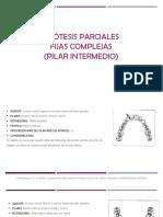 Configuracion de la protesis parcial fija