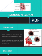 estenosis pulmonar.pptx