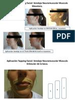 Aplicación Tapping Facial Vendaje Neuromuscular Musculo Masetero
