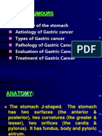 dars_gasteric_cancer.ppt